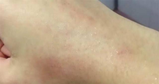 คุณมีอาการแบบนี้หรือป่าว  5 สัญญาณมีสารพิษในร่างกายมากเกิน