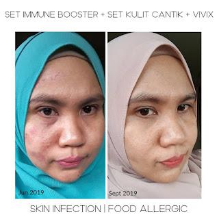 Skin infection, jangkitan kulit, ringworm, kulit gatal, nutriferon, set immune booster shaklee, food allergic, alahan makanan, vita c plus, vita e complex, antifungal,