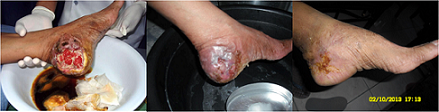 Quantumin Plus Infected Wound Healing