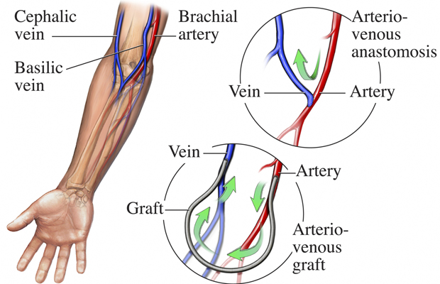 Seton for anal fistula - Crohn's Disease -.