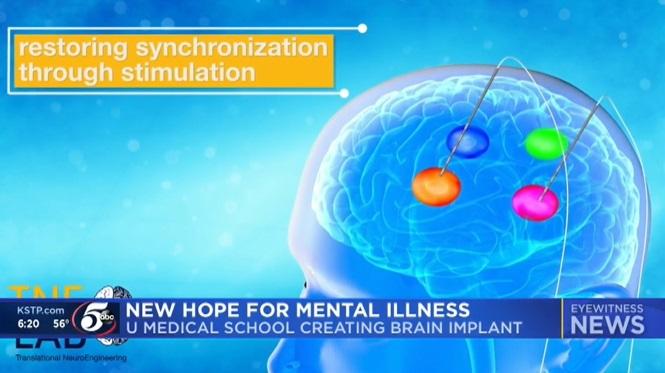 El primer chip cerebral de su tipo para tratar los trastornos mentales que se desarrolla en la U of M