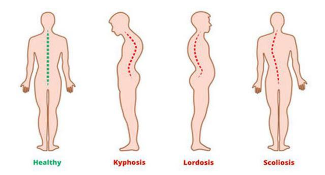 postur tubuh, postur tubuh sehat, postur tubuh kifosis, postur tubuh skoliosis, postur tubuh lordosis