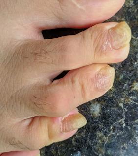 Micose de unhas