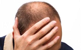 Tips Alami Mencegah Kebotakan Rambut