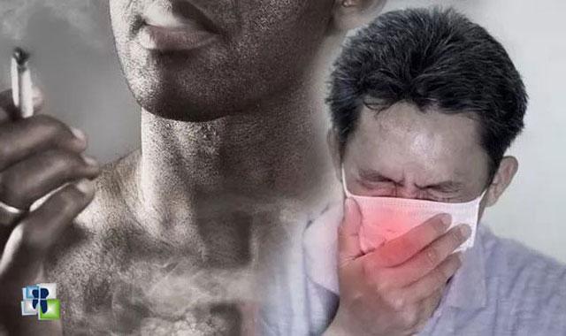التدخين يسبب الاصابة بفيروس كورونا ويزيد من شدة الأعراض