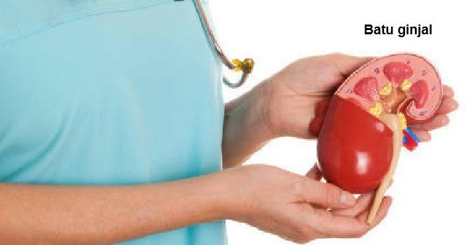12 Makanan Sehat Bagi Penderita Gagal Ginjal