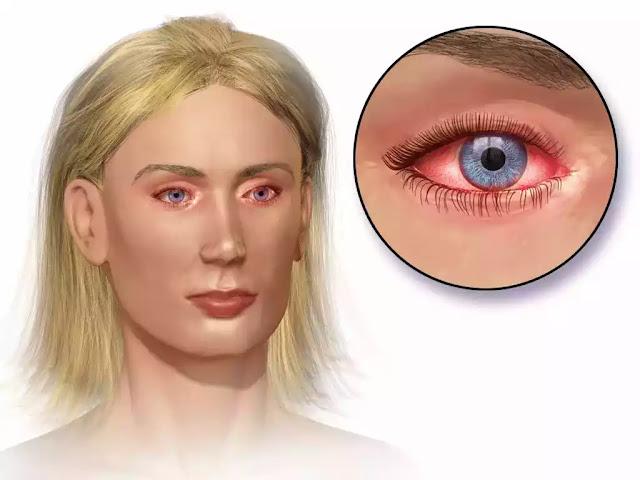 Eye Allergies, Drops for eye allergies, Eye Allergies: Symptoms, Causes and Drops For Eye Allergies, Allergies