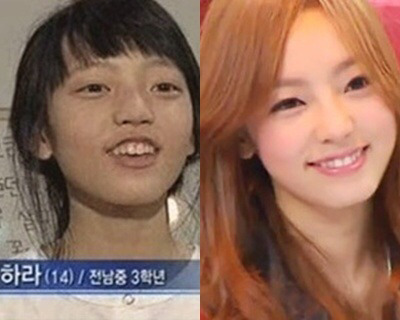 Celebrities Before And After Getting Their Teeth Fixed