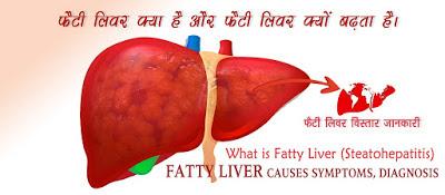 फैटी लिवर कारण लक्षण और उपचार, Fatty Liver Causes Symptoms in Hindi,  fatty liver ke lakshan, fatty liver ke karan, fatty liver ka upchar,  फैटी लिवर