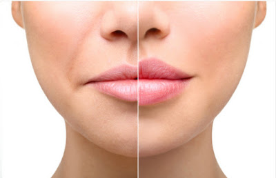 dermafiller treatment in mumbai