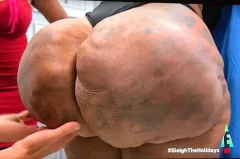 Lady's Fake Butt0cks Enlargement turns to rock, she can't urinate (pictures)