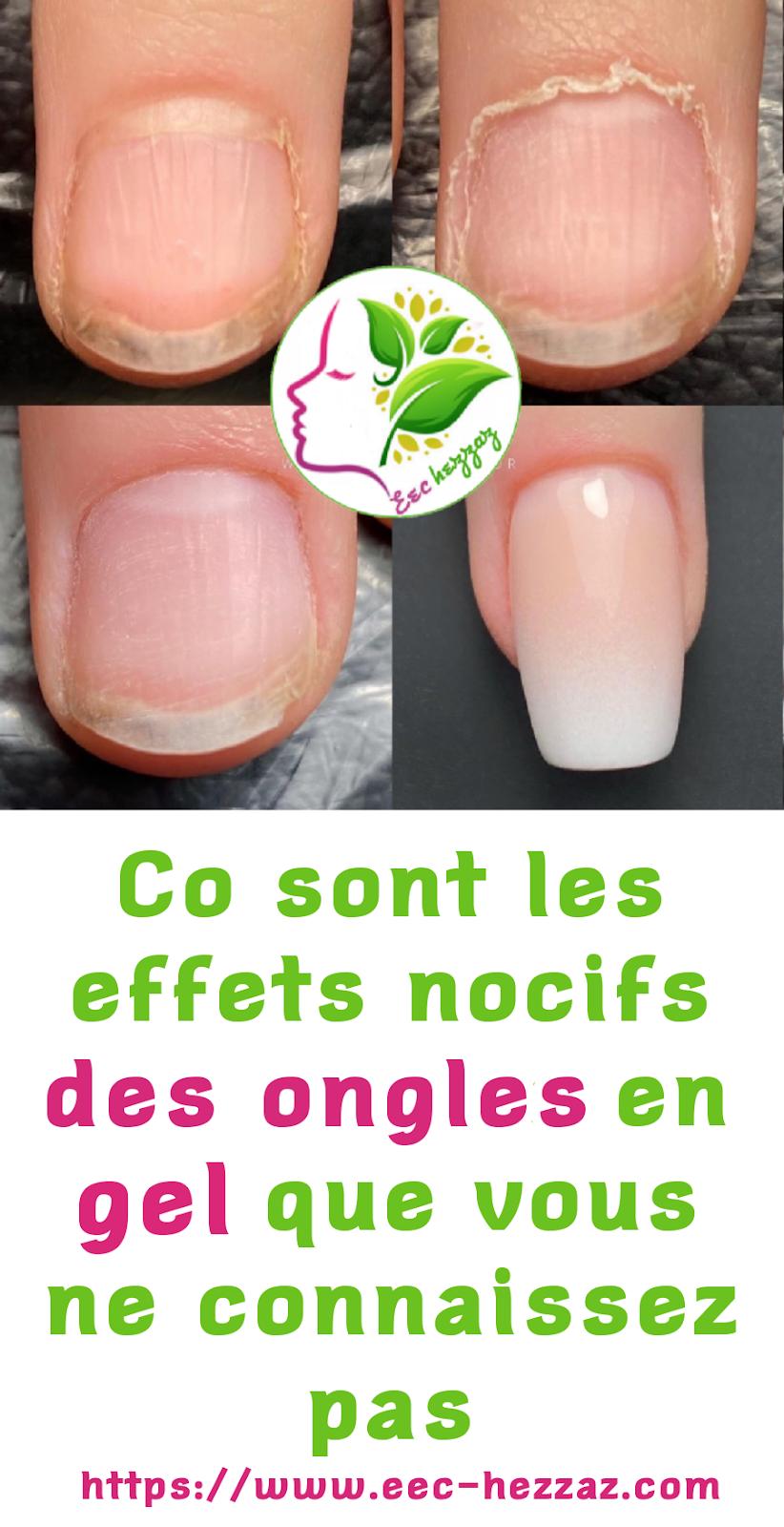 Co sont les effets nocifs des ongles en gel que vous ne connaissez pas
