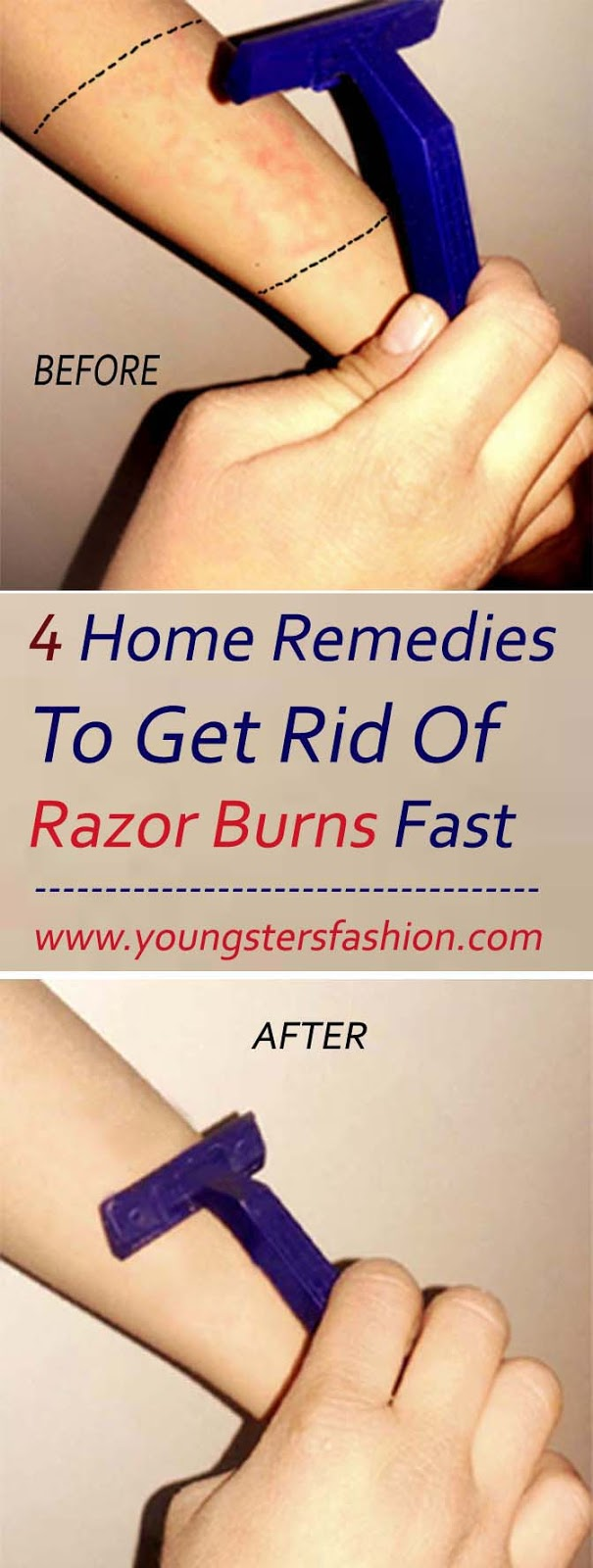 4 Home Remedies To Get Rid Of Razor Burns Fast