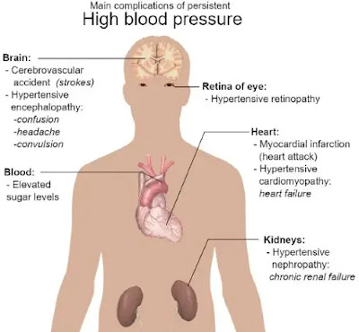 What are the causes of high blood pressure