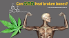 Can CBD heal broken bones?