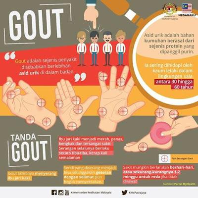 Tanda-Tanda Penyakit Gout