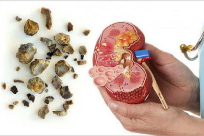 3 Cara Sederhana Untuk Mencegah Batu Ginjal dan Opsi Penyembuhan Batu Ginjal