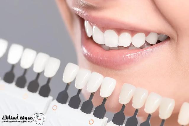 أضرار تبييض الأسنان على صحة الفم والأسنان.