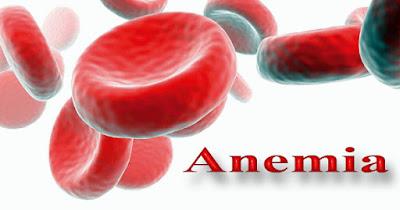 Pengobatan Alami Anemia (Kurang Darah) Yang Mujarab