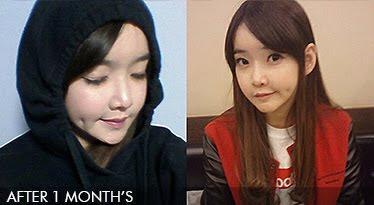 1 bulan sesudah operasi dua rahang Korea