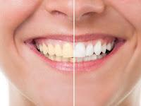 4 Hal Yang Perlu Kamu Ketahui Sebelum Bleaching Gigi
