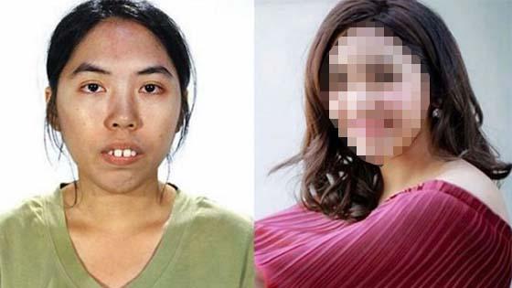 Perubahan Menakjubkan Wanita Ini Sebelum Dan Selepas Pembedahan Plastik
