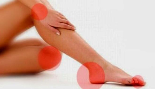 Gejala dan Cara mengobati gout arthritis
