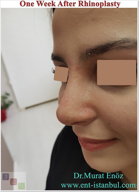 One Week After Rhinoplasty,7 Days After Nose Job, Recovery After Nose Aesthetic Surgery in Istanbul