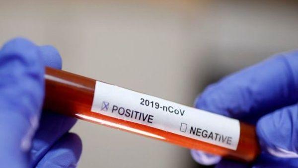 Confirman primeros casos de coronavirus en Argentina y Chile