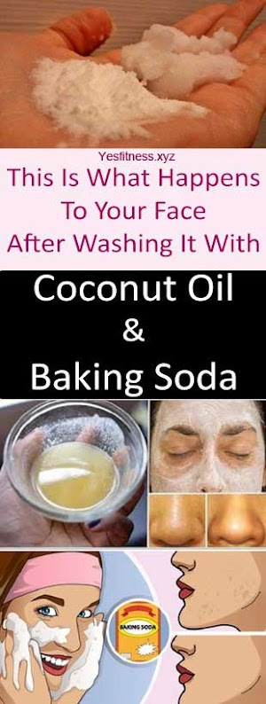 This Is What Happens To Your Face After Washing It With Coconut Oil And Baking Soda