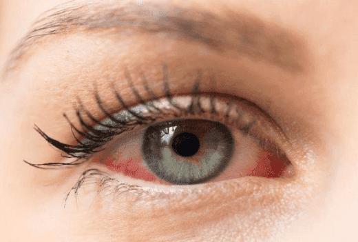 5 Cara Alami Memutihkan Mata Merah