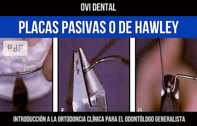 PDF: PLACAS PASIVAS O DE HAWLEY - Elementos de retención