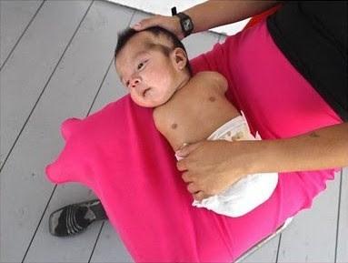 Carlitos: bebê com deficiências atribuídas a pesticidas