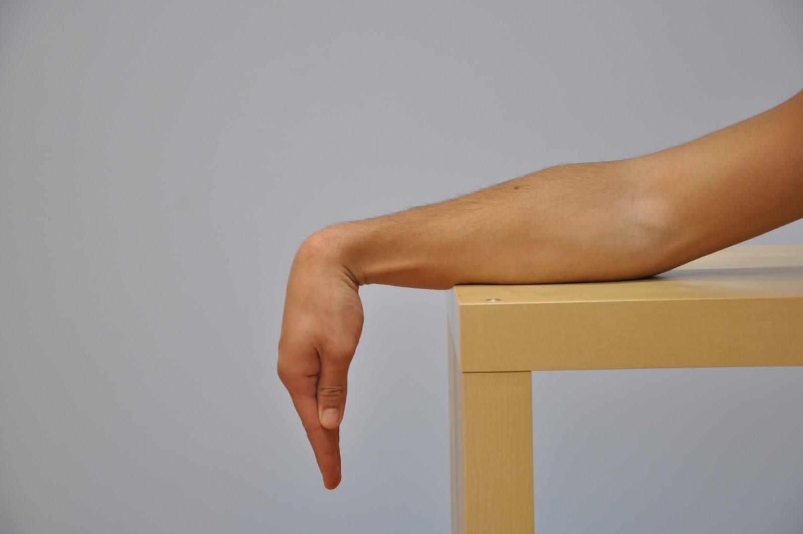 Pelo meu no braço pulso subindo dor