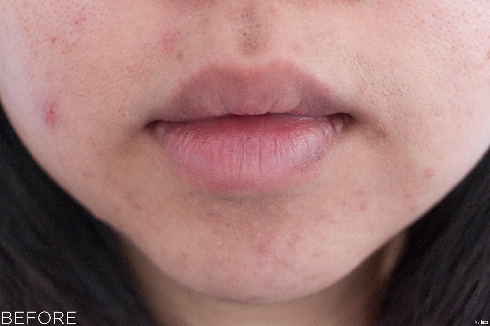 tria Hair Removal Laser Facial Hair Closeup Before