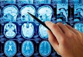 beyin tümörü emar