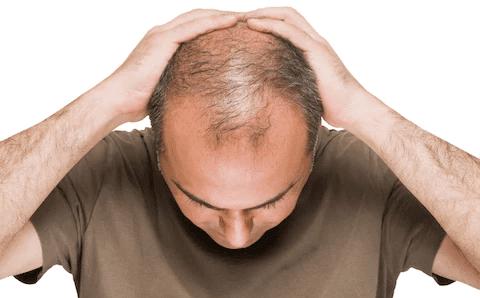 Stop Hair Loss - Vitamins For Hair Loss