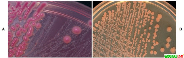 A, Example of lactose-fermenting gram-negative rods producing pink colonies on MacConkey agar (MAC). B, Example of nonlactose-fermenting gram-negative rods producing colorless colonies on MAC.