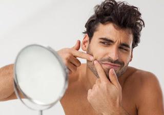 pimples-remedies-for-men