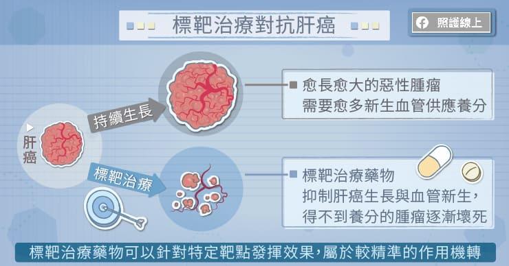 標靶治療對抗肝癌