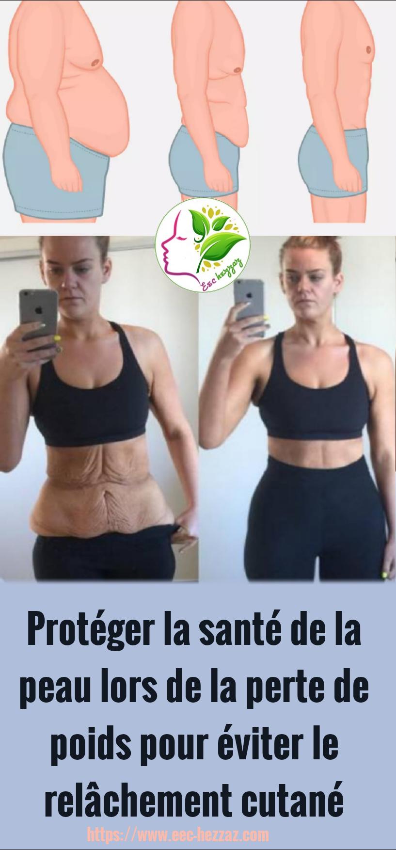 Protéger la santé de la peau lors de la perte de poids pour éviter le relâchement cutané
