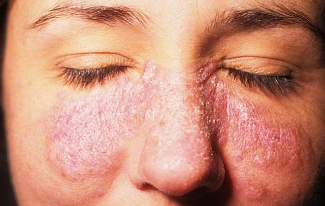 Asal Mula Penyakit Lupus Dan Gejala Awal Berita Aneh Dan Unik Di Dunia