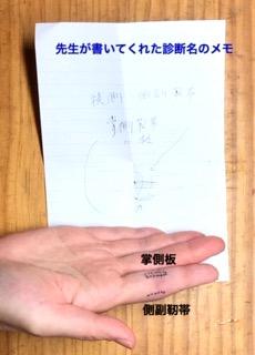 指の側副靭帯損傷と掌側板損傷の場所