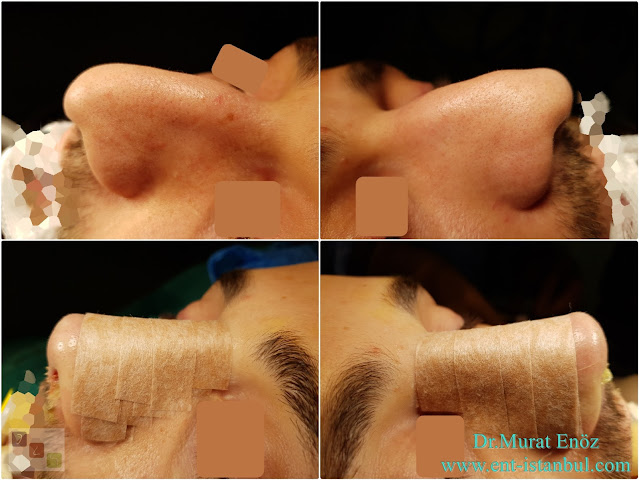 Male Nose Job, Male Rhinoplasty,Rhinoplasty in Men Istanbul,