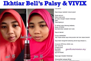 Bell's palsy; vivix shaklee; Shaklee labuan; mencegah bell's palsy