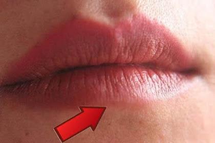 Arti Kedutan Bibir Bawah Terus Menerus Menurut Primbon Jawa