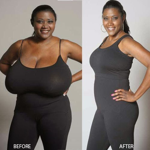 Really Breast Reduction Surgery Can Dramatically Change