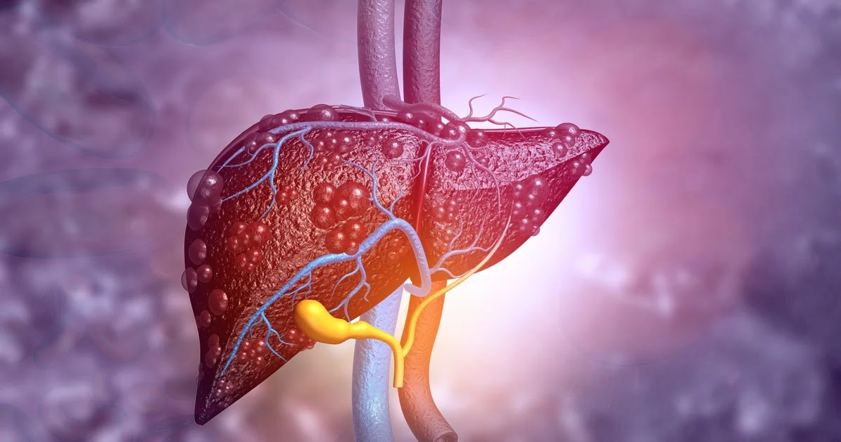In an effort to combat a growing worldwide epidemic of Nonalcoholic Fatty Liver Disease (NAFLD), scientists have discovered a new target and a new the