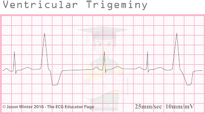 Ecg Educator Blog Ventricular Ectopics