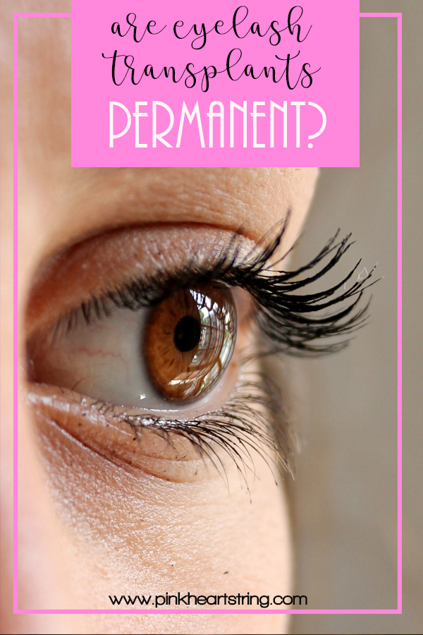Are Eyelash Transplants Permanent?